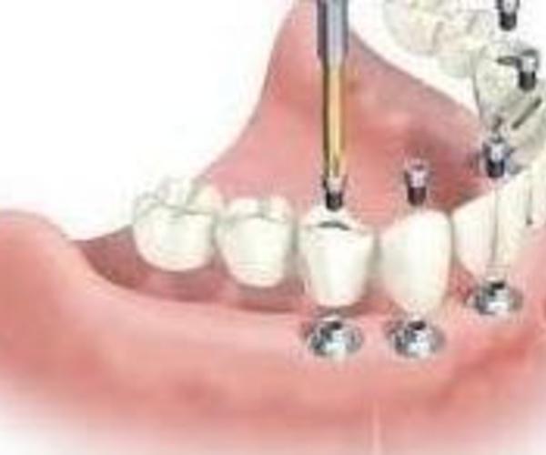 Implantes dentales en Clínica Dental Villa Vigil y Asociados, S.L.