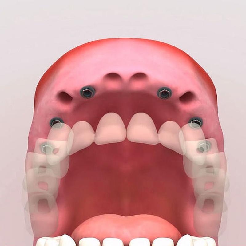 Implantes dentales: Servicios de Centro Dental Integral Mª Azucena Plata Vega