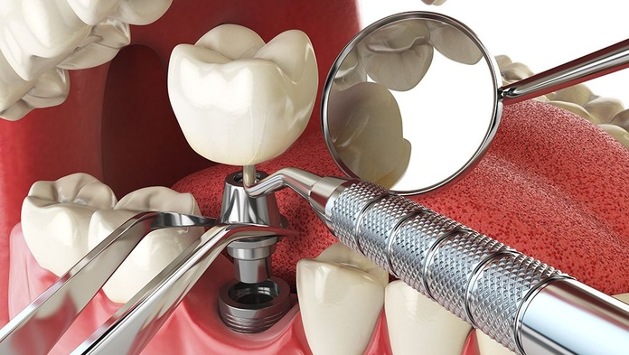 Implantología: Tratamientos de Clínica dental Vall Hebrón