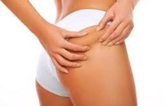 Tratamiento Exprés Anticelulítico y Reductor de piernas o abdomen: PELUQUERÍA Y ESTETICA de Peluquería Ven Ponte Bell@