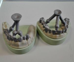 La mejor tecnología para las prótesis dentales