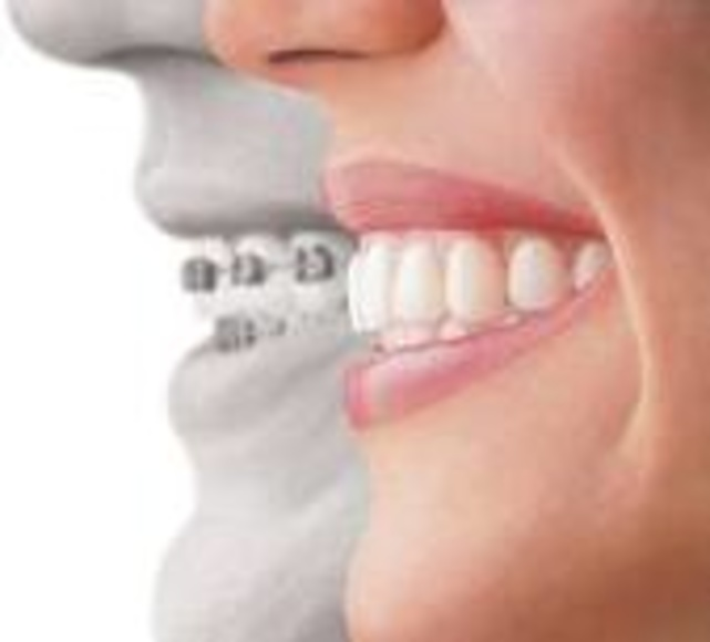 ORTODONCIA: ESPECIALIDADES of Clínica Dental Morey