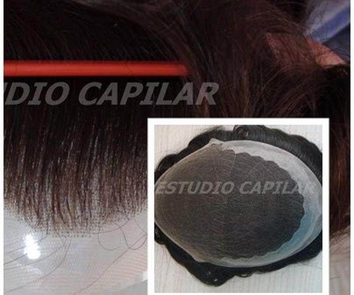 1 Lace frontal y centro ,lados y trasero poly  - EUROPEO REMY: Catálogo Prótesis Capilares de Estudio Capilar