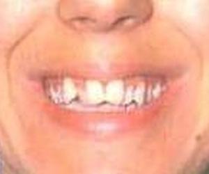 Ortodoncia, antes del tratamiento