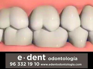 Como se realiza una reconstrucción dental
