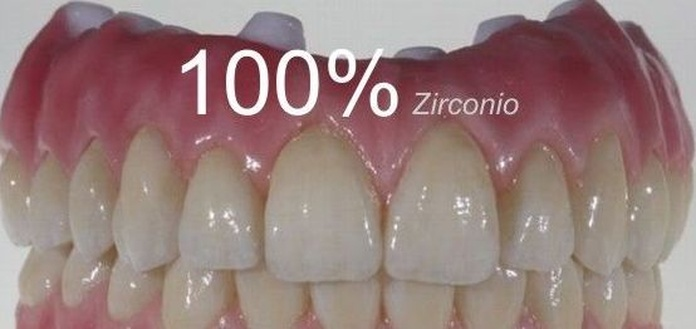 ZIRCONIO ÚLTIMAS TECNOLOGÍAS: Catálogo de Clínica Dental Dra. Miriam Signorini