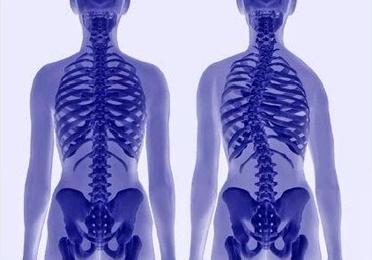 La Escoliosis y la Quiropráctica