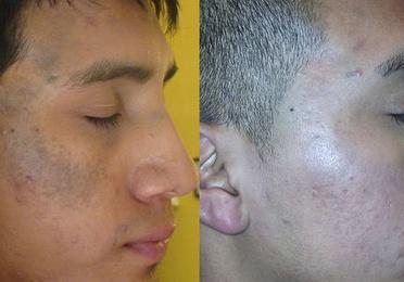 Eliminación de Nevus Faciales (nevus de ota)