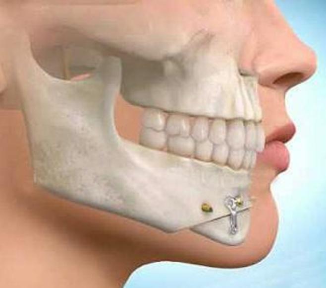 Cirugía maxilofacial: Productos de Horzkari - Hortz Osasun Klinika