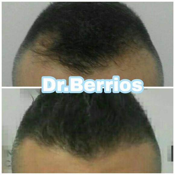 Diagnóstico de la alopecia: Servicios de 0 Calvicie