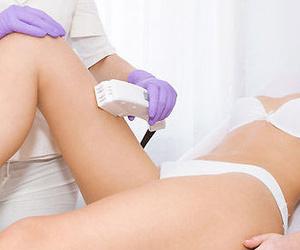 Tratamiento de cavitación