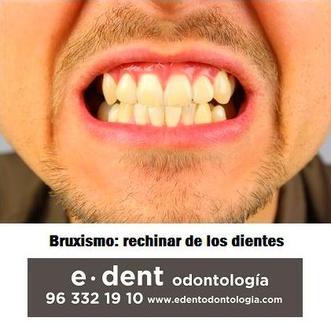 Si rechinas los dientes, sufres bruxismo