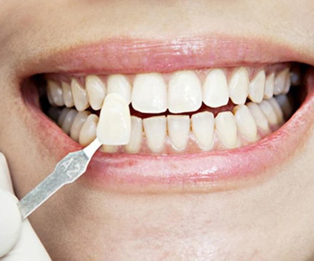 Aspectos básicos del blanqueamiento dental