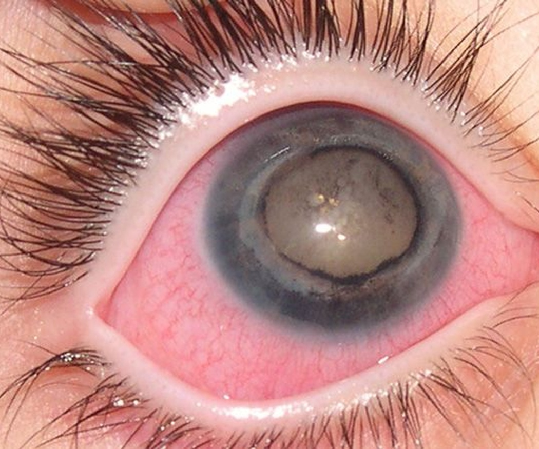 Factores de riesgo del glaucoma