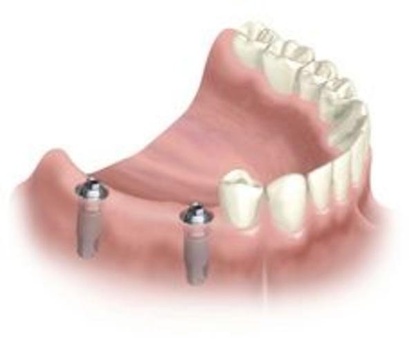 Implantes: Tratamientos de Dra. Mª José Cadiñanos