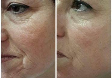 Cuidado y rejuvenecimiento facial