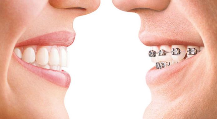 ORTODONCIA: Especialidades  de Clínica Dental Enguera