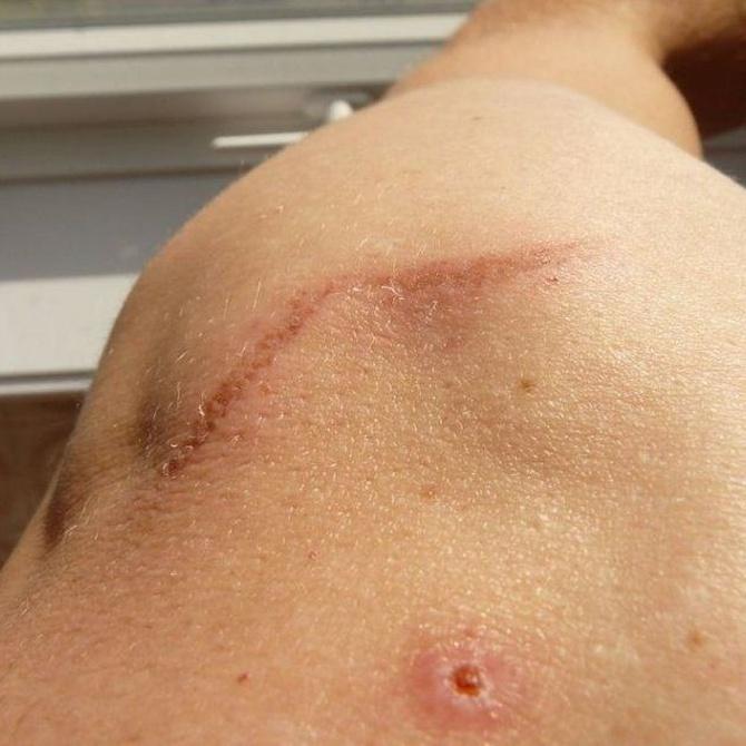 La cirugía para eliminar cicatrices