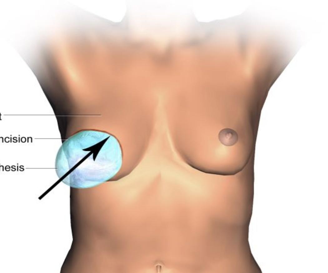 La importancia de la reconstrucción mamaria