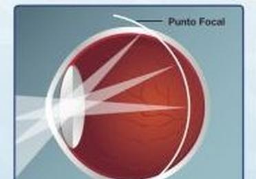 Lentes de contacto para el control de la miopía