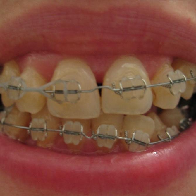 Las diferencias entre la ortodoncia invisible y los brackets metálicos