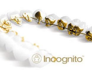 Ortodoncia lingual. Incognito