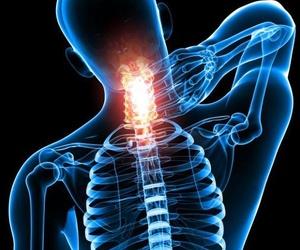 Tratamiento de dolores cervicales