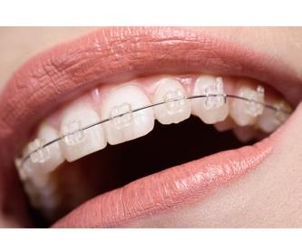 Brackets Zafiro: Tratamientos Dentales de Clínica Dental Getafe