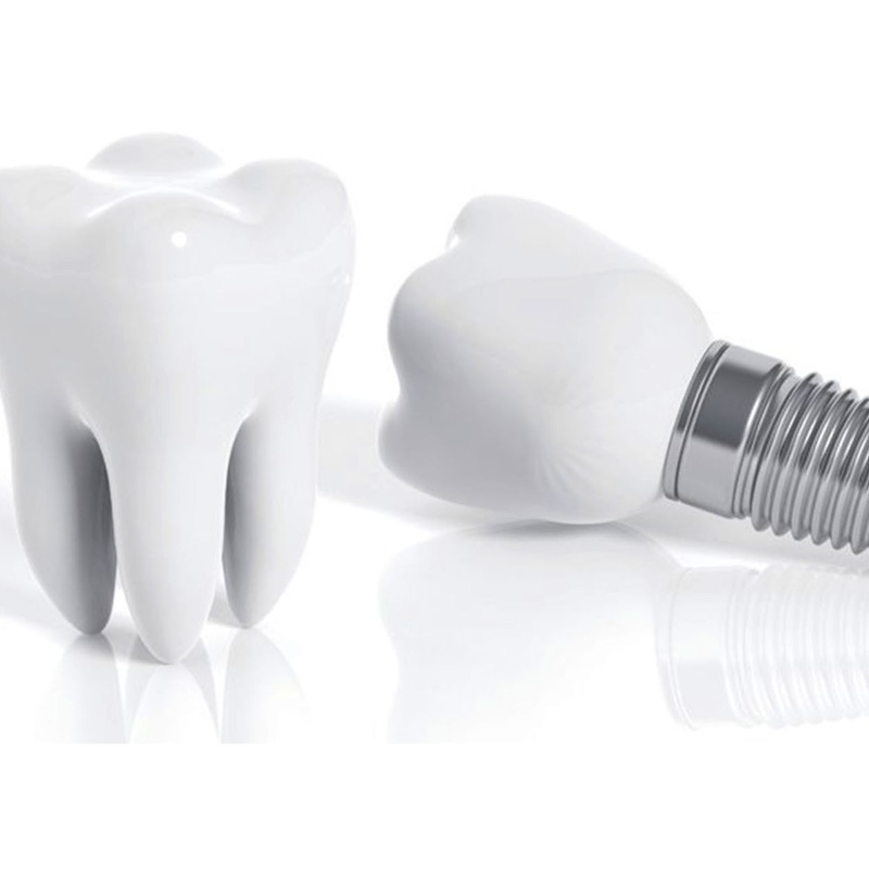 IMPLANTES DENTALES PREMIUM: Servicios of Bukalix