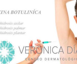 """Toxina botulínica """"una solución para la Hiperhidrosis axilar,palmar y plantar"""""""