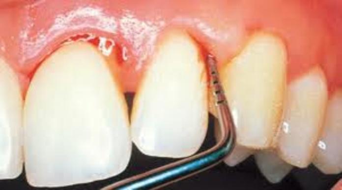 Periodoncia: Tratamientos de Dental Icaria, S.L.