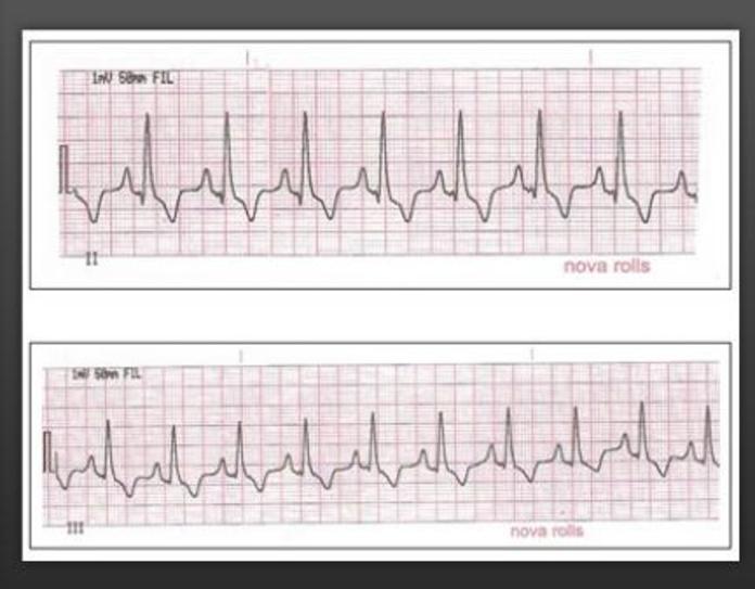 Cardiología: Servicios de Hospital Veterinari Sant Antoni Abat