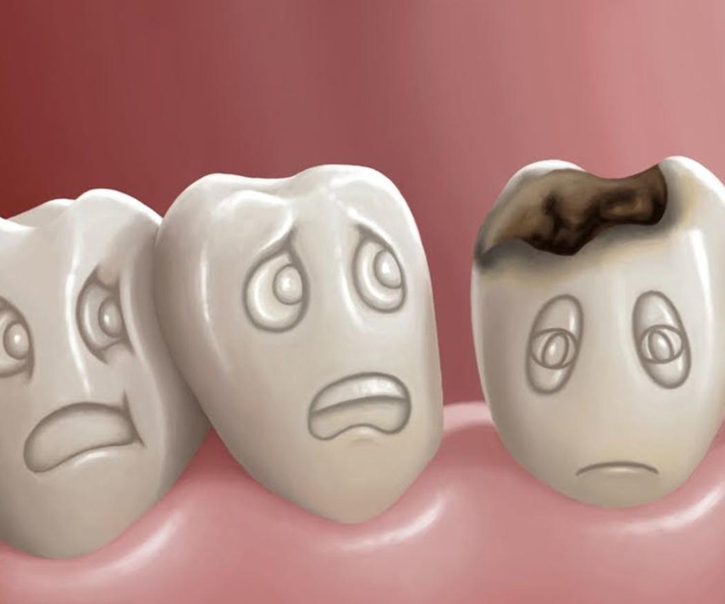 Las urgencias dentales más frecuentes