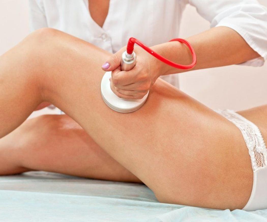 Cuestiones habituales sobre la cavitación estética (I)