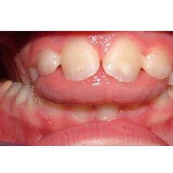 Trastornos funcionales dentofaciales: Servicios de Clínica Foniatría - Logopedia Doctora Fernández Salazar