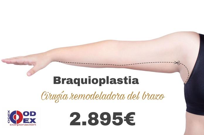 Braquioplastia: Tratamientos estéticos de Odex Corporación