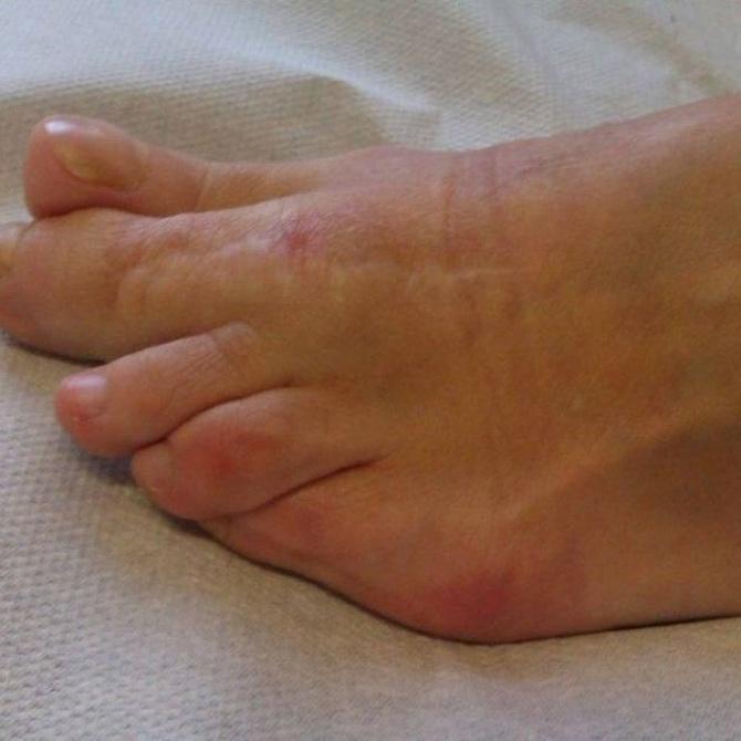 ¿Qué es la enfermedad Freiberg?