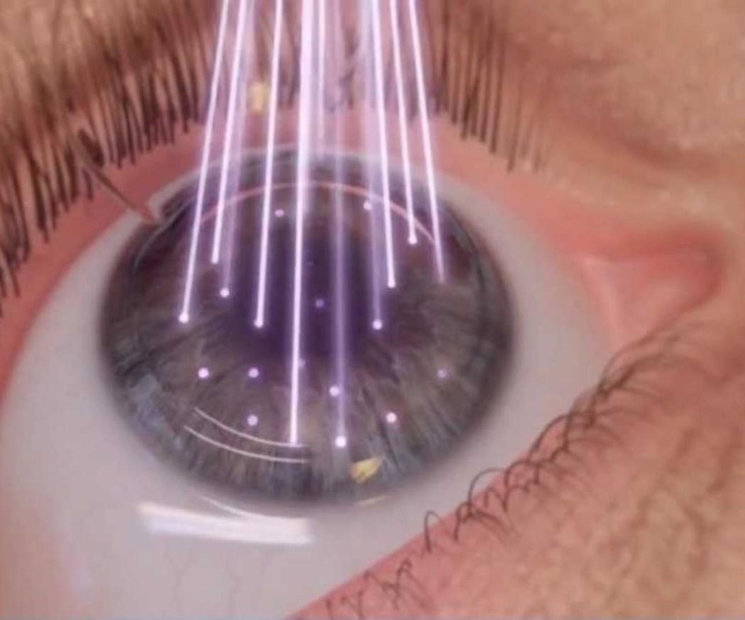 La cirugía refractiva