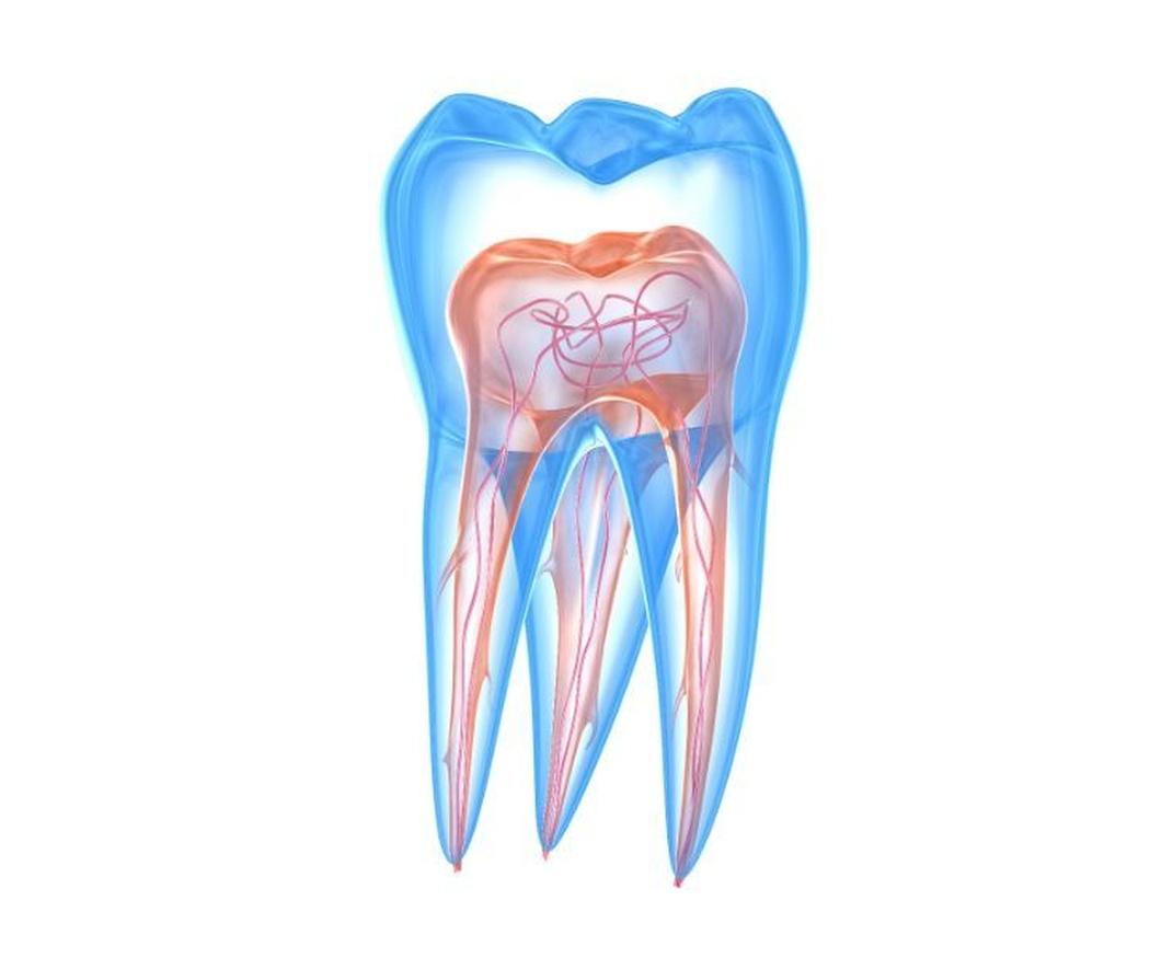 Cómo se realiza una endodoncia