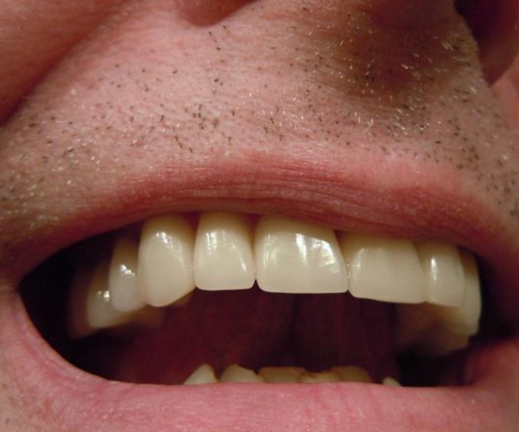 El recontorneado dental estético (I)