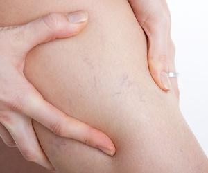 Tratamiento de Arañas vasculares con Espuma/Microespuma