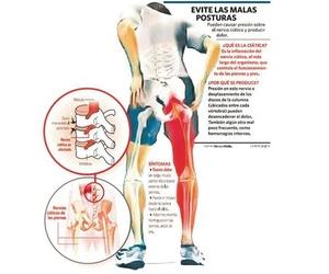 Importancia de la higiene postural para evitar dolor de espaldakn