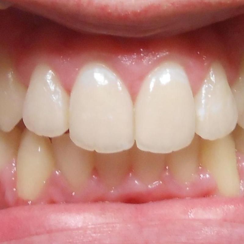 Ortodoncia terminada