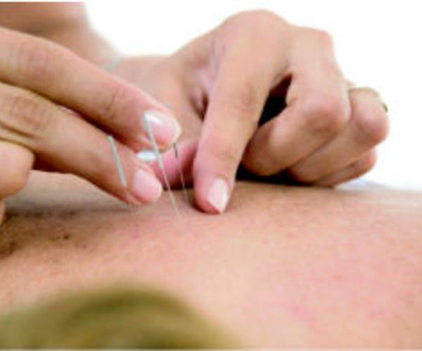 Fisioterapia y rehabilitación en Córdoba