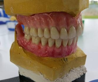 Prótesis fijas de cerámica pura: Laboratorio Dental de Laboratorio de Prótesis Dental