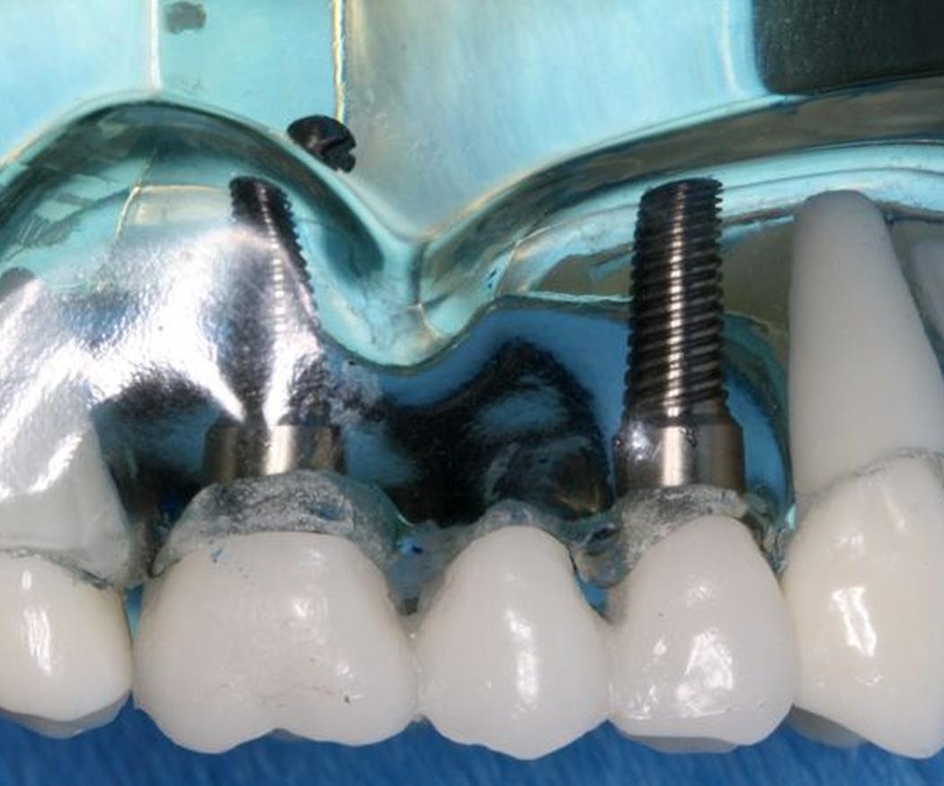 Principales diferencias entre implantes y coronas dentales
