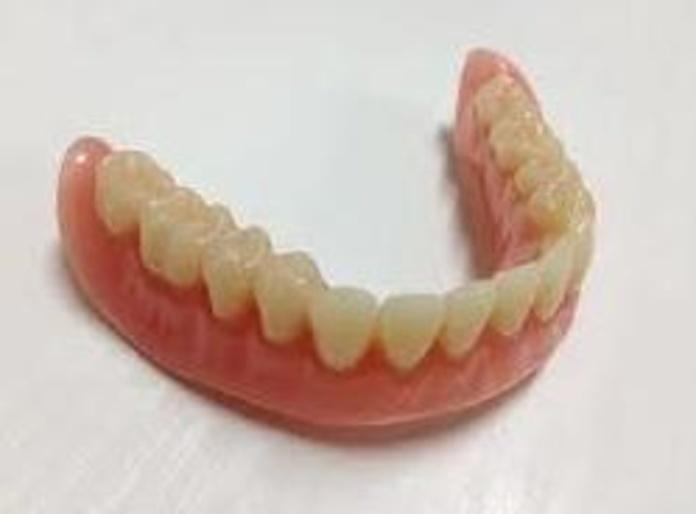 Prótesis parcial removibles: Servicios de Atenas Laboratorio Dental