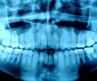 Odontología general: Tratamientos de Clínica Dental Fortaña-Giménez