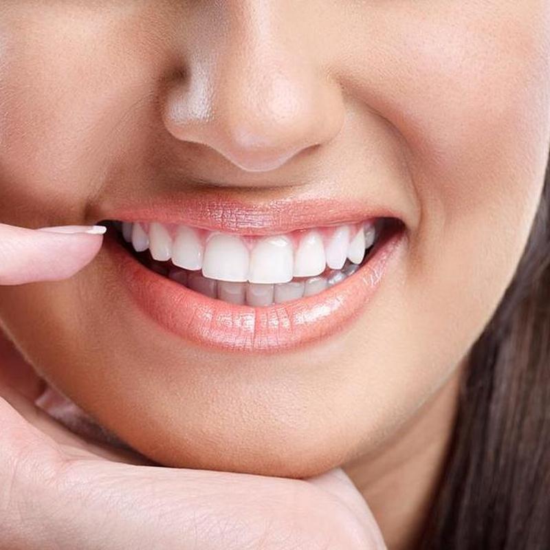 Implantes dentales Clínica Implanteoral Milladoiro