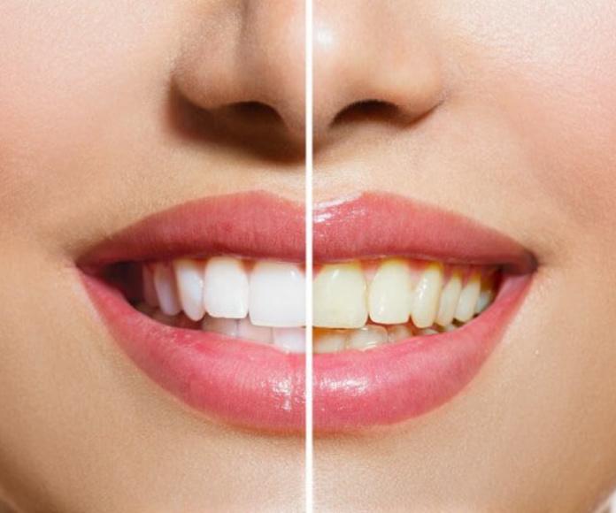 Blanqueamiento: Tratamientos y tecnología  de Clínica Dental Los Milagros